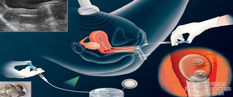 Döllenme ve Embriyon Transferi