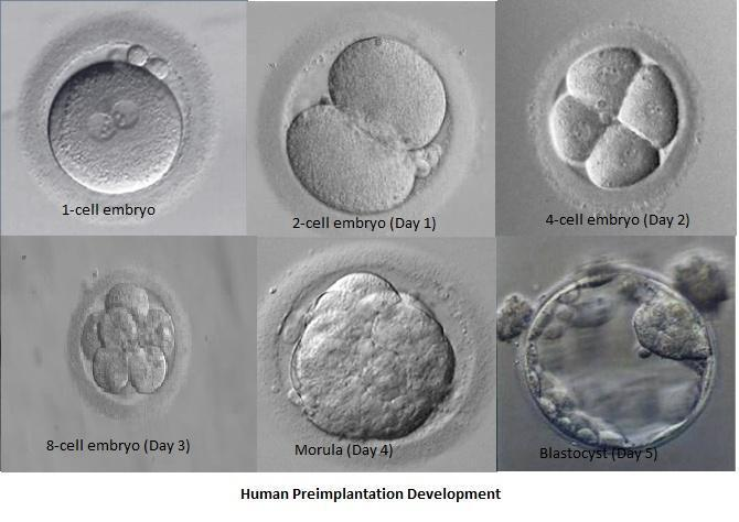 Embriyo transferi ve yumurta toplama işlemi - Prof. Dr. Ahmet Zeki Işık